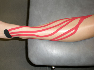Kinesio tape for swelling